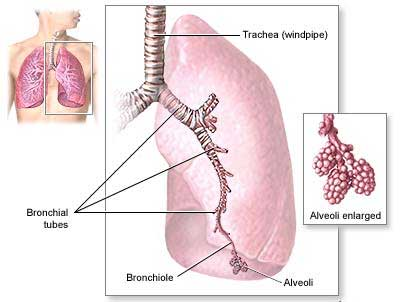 steroids for bronchitis while pregnant